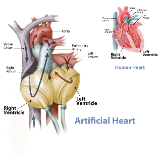 artificial heart Case study #9: the artificial heart: cost, risks, and benefits 29 emory had symptomatic improvement, only 50 percent returned to work after surgery.
